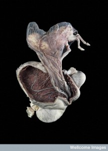 Pregnant uterus, equine. Credit Michael Frank, Royal Veterinary College, Wellcome Images