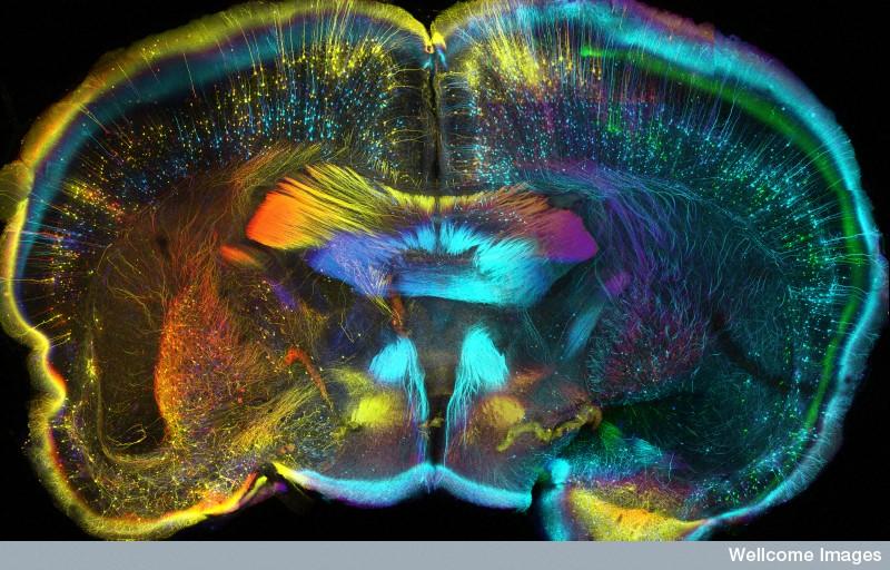 Credit Luis de la Torre-Ubieta, Geschwind Laboratory, UCLA, Wellcome Images